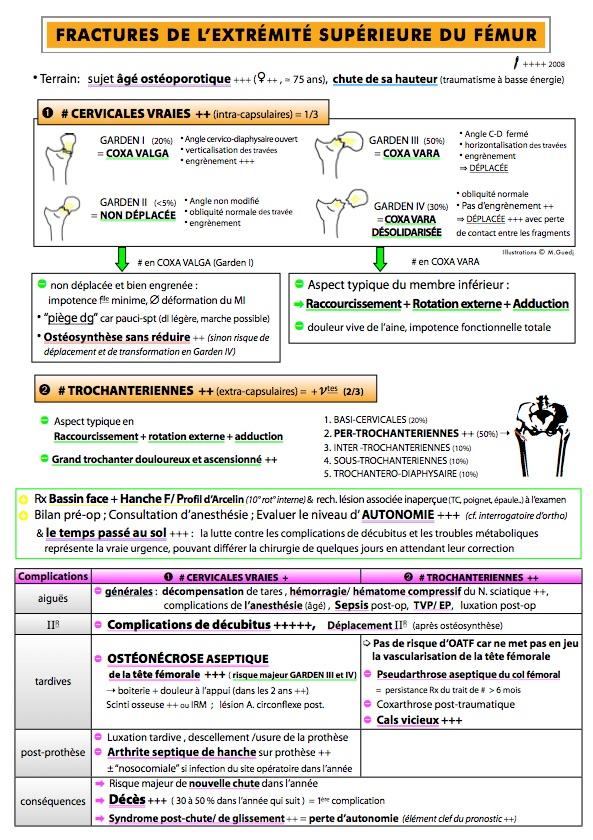 fracture bimalléolaire complications