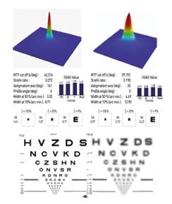 cataracte quelle vision