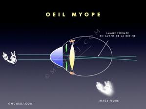 3fbc36adc9 Un oeil myope, dont la longueur axiale est souvent supérieure à cette  valeur, focalise les rayons émis par un objet lointain en avant de la  rétine.